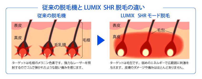 従来の脱毛機とLUMIX脱毛の違い
